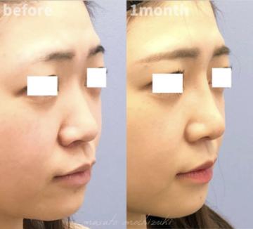 湘南美容クリニック 金沢院の鼻の整形の症例写真