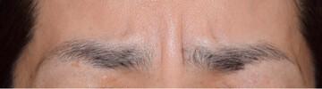 春山クリニックの顔のしわ・たるみの整形の症例写真[ビフォー]
