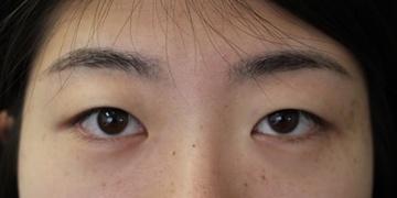 カリスクリニックの目・二重の整形の症例写真[ビフォー]