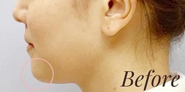 表参道スキンクリニックの顔の整形(輪郭・顎の整形)の症例写真[ビフォー]