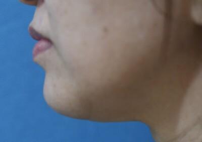 ウルセラ(HIFU/ハイフ)による顎下の引き締めの症例写真[アフター]