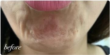 かなえデンタルクリニックの顔のしわ・たるみの整形(リフトアップ手術)の症例写真[ビフォー]