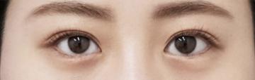 もとび美容外科クリニック 新宿院の目・二重整形の症例写真[アフター]