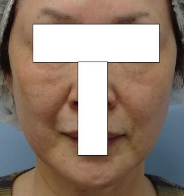 みらいビューティークリニック和歌山の顔のしわ・たるみの整形の症例写真[ビフォー]