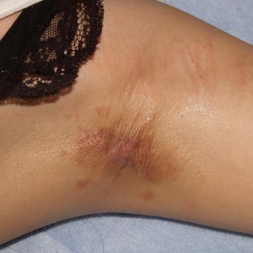 タウン形成外科クリニックの傷跡治療、ケロイドの症例写真[ビフォー]