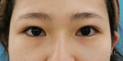眼瞼挙筋前転術による眼瞼下垂治療の症例写真[アフター]