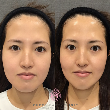 CHERI BEAUTY CLINIC (シェリビューティークリニック)のシワ・たるみ(照射系リフトアップ治療)の症例写真
