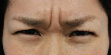 エースクリニックグループの顔のしわ・たるみの整形の症例写真[ビフォー]
