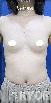 共立美容外科・歯科の豊胸・胸の整形の症例写真[ビフォー]