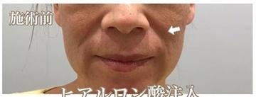 西宮SHUHEI美容クリニックの顔のしわ・たるみの整形の症例写真[ビフォー]