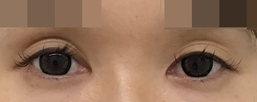 東郷美容形成外科 福岡の目元の整形、くま治療の症例写真[ビフォー]