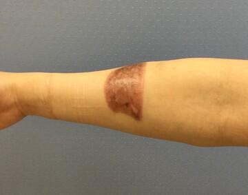 福岡博多駅前通中央クリニックの傷跡治療、ケロイドの症例写真[アフター]