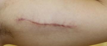 千葉中央美容形成クリニックのタトゥー除去(刺青・入れ墨を消す治療)の症例写真[アフター]