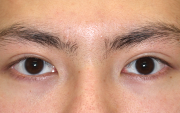大塚美容形成外科・歯科の目・二重の整形の症例写真[アフター]