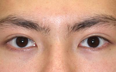 眼瞼下垂 両目 術前&術後3か月[アフター]