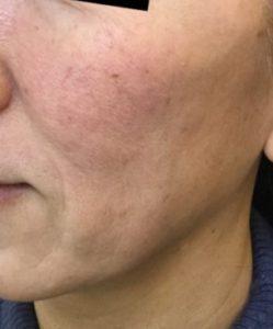 とみ皮膚科クリニックのシワ・たるみ(照射系リフトアップ治療)の症例写真[アフター]