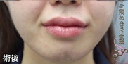 銀座みゆき通り美容外科大阪院の口もと、唇の整形の症例写真[アフター]