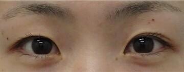 みらいビューティークリニック和歌山の目・二重整形の症例写真[ビフォー]