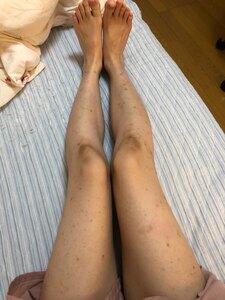 ザ・ニシキタクリニックCHRISの医療脱毛の症例写真[ビフォー]