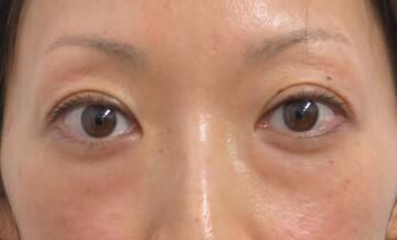 東京美容外科 秋田院の目元整形・クマ治療の症例写真[ビフォー]