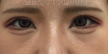 東京ゼロクリニック銀座の目・二重の整形の症例写真[アフター]