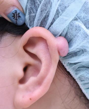 医療法人秀晄会 心斎橋コムロ美容外科クリニックの耳の整形の症例写真[ビフォー]