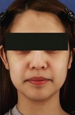 銀座長瀬クリニック 大阪院の顔のしわ・たるみの整形の症例写真[ビフォー]
