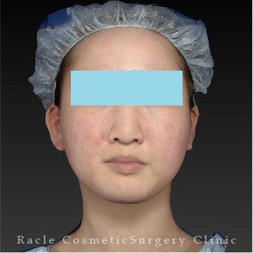 新宿ラクル美容外科クリニックのリフトアップレーザーの症例写真[ビフォー]