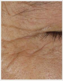 かよこ・クリニックのシワ・たるみ(照射系リフトアップ治療)の症例写真[ビフォー]
