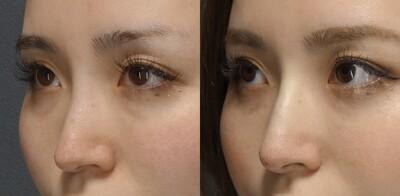 鼻のヒアルロン酸注入で自然に綺麗に修正出来ますの症例写真