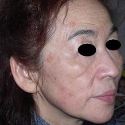 共立美容外科・歯科のシミ治療(シミ取り)・肝斑・毛穴治療の症例写真[アフター]