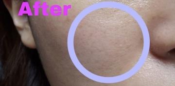 金山美容クリニックのシミ取り・肝斑・毛穴治療の症例写真[アフター]