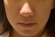 東京イセアクリニック渋谷院のニキビ治療・ニキビ跡の治療の症例写真[アフター]
