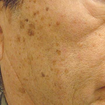 ドーズ美容外科のシミ治療(シミ取り)・肝斑・毛穴治療の症例写真[ビフォー]