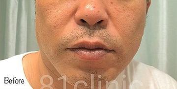 81clinicの医療レーザー脱毛の症例写真[ビフォー]