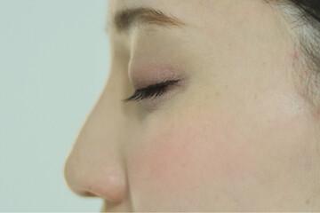 東京イセアクリニック渋谷院の鼻の整形の症例写真[アフター]