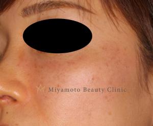 ルビーフラクショナルレーザーのそばかす治療の症例写真