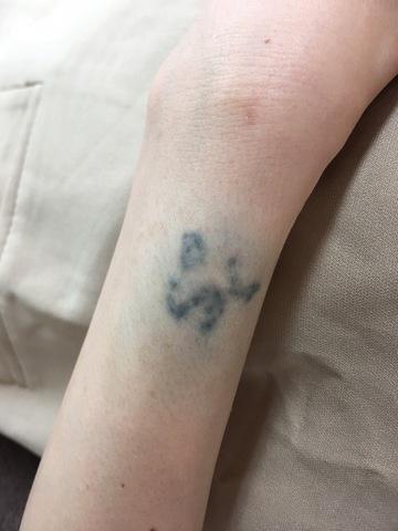 札幌クララ美容皮膚科のその他の美容医療の症例写真[ビフォー]
