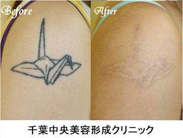 千葉中央美容形成クリニックのタトゥー除去(刺青・入れ墨を消す治療)の症例写真