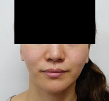 バッカルファット除去 手術前➡3ヶ月後の症例写真[ビフォー]