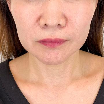 A CLINIC(エークリニック)の顔のしわ・たるみの整形の症例写真[アフター]