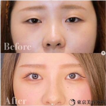 東京美容外科 仙台院の目・二重整形の症例写真