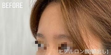 GLANZ CLINIC (グランツクリニック)の顔の整形(輪郭・顎の整形)の症例写真[ビフォー]