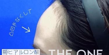 額ヒアルロン酸注入の症例写真[ビフォー]