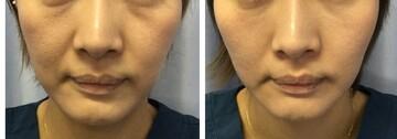 鹿児島三井中央クリニックの顔のしわ・たるみの整形(リフトアップ手術)の症例写真