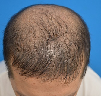 TCB東京中央美容外科の薄毛治療・AGA・発毛の症例写真[ビフォー]