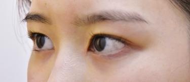 他院目頭切開術後修正の症例写真[アフター]