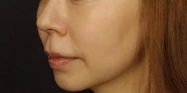 ピコシュアレーザーによるシミ治療の症例写真[アフター]