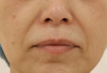 すなおクリニックの顔の整形(輪郭・顎の整形)の症例写真[ビフォー]