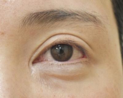 他院目頭切開術後修正の症例写真[ビフォー]
